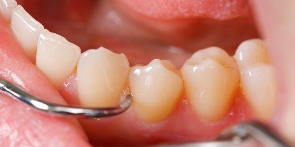 Health Tip Prevent Gum Disease
